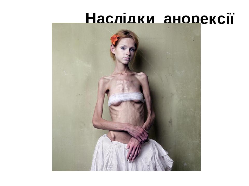 Наслідки анорексії