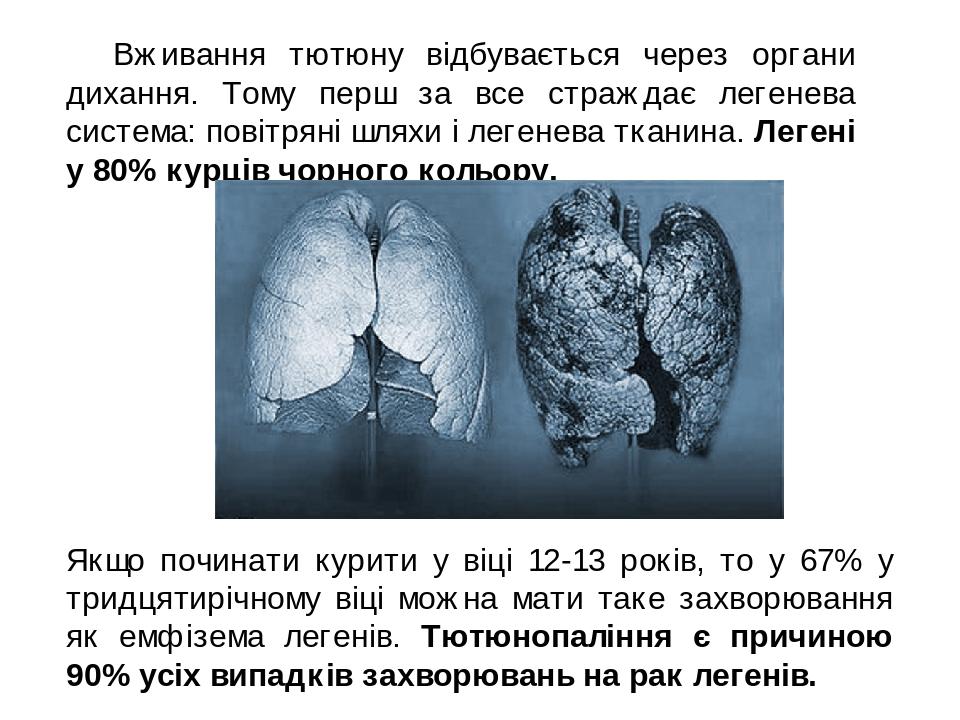 Вживання тютюну відбувається через органи дихання. Тому перш за все страждає легенева система: повітряні шляхи і легенева тканина. Легені у 80% к...